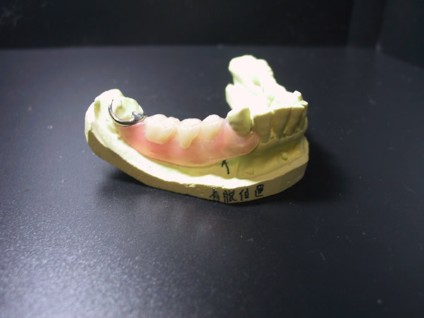 ルシトーンFRSとキャスト鈎のコンビネーションで、7番の歯冠長が無かった為、キャスト鈎でしっかりと支えました。