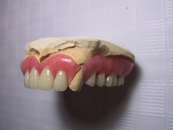 多数歯欠損でのルシトーンFRS。口蓋の厚さは、通常の義歯と同等。たわみが出ない程度に