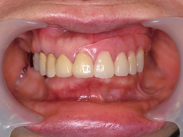 ルシトーンFRS、患者様の口腔ない写真