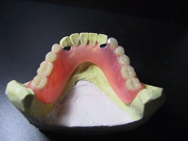 レイニング義歯2
